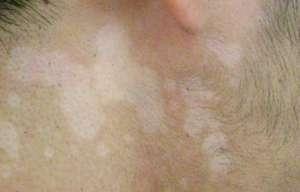 治疗白斑风有效方法
